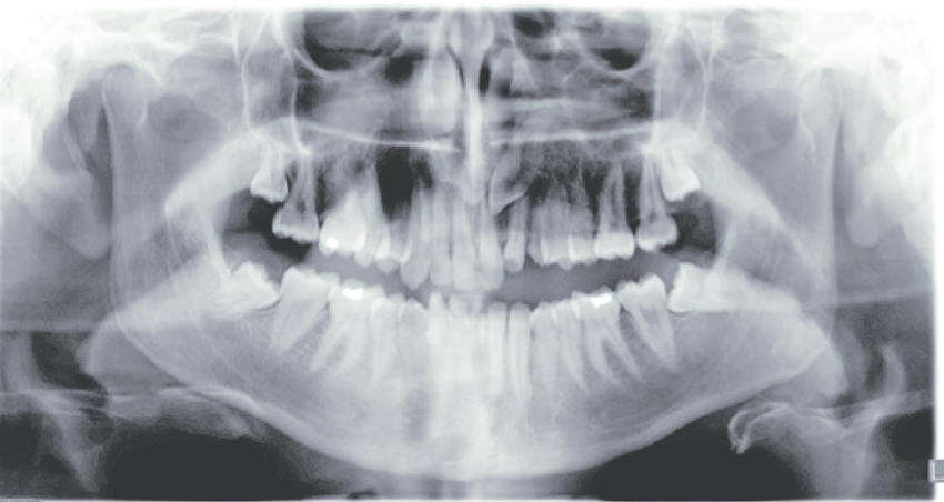 dental x ray in Gilbert
